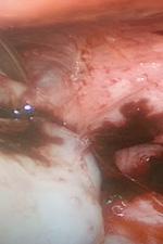 Эндометриоидные гетеротопии на задней поверхности матки + эндометриоидная киста левого яичника