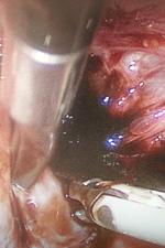Лечение эндометриоза. Удаление эндометриоидной кисты